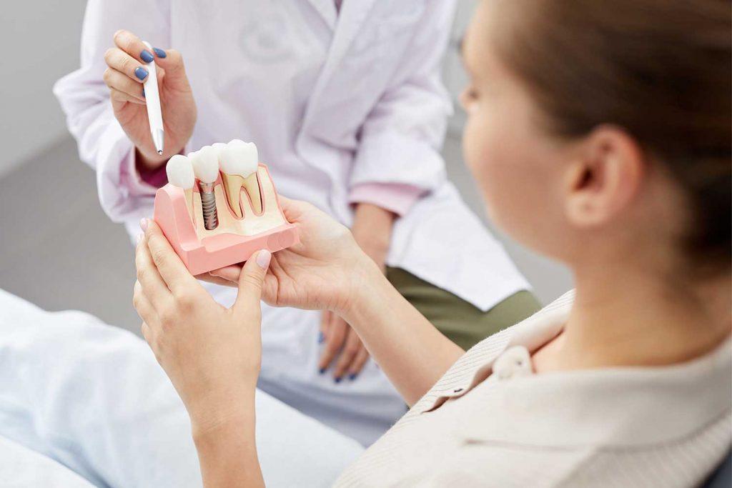 Uzupełnianie ubytków zębów za pomocą implantów